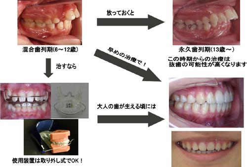 碧南市で出っ歯の治療