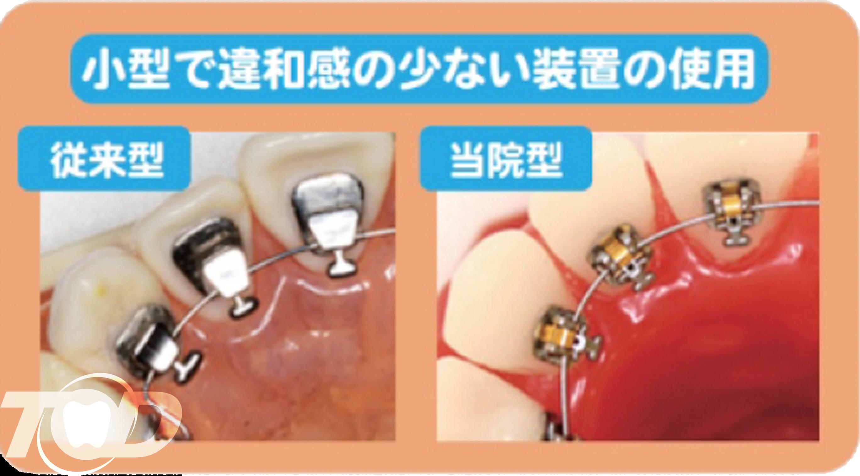 当院の舌側矯正の特徴1