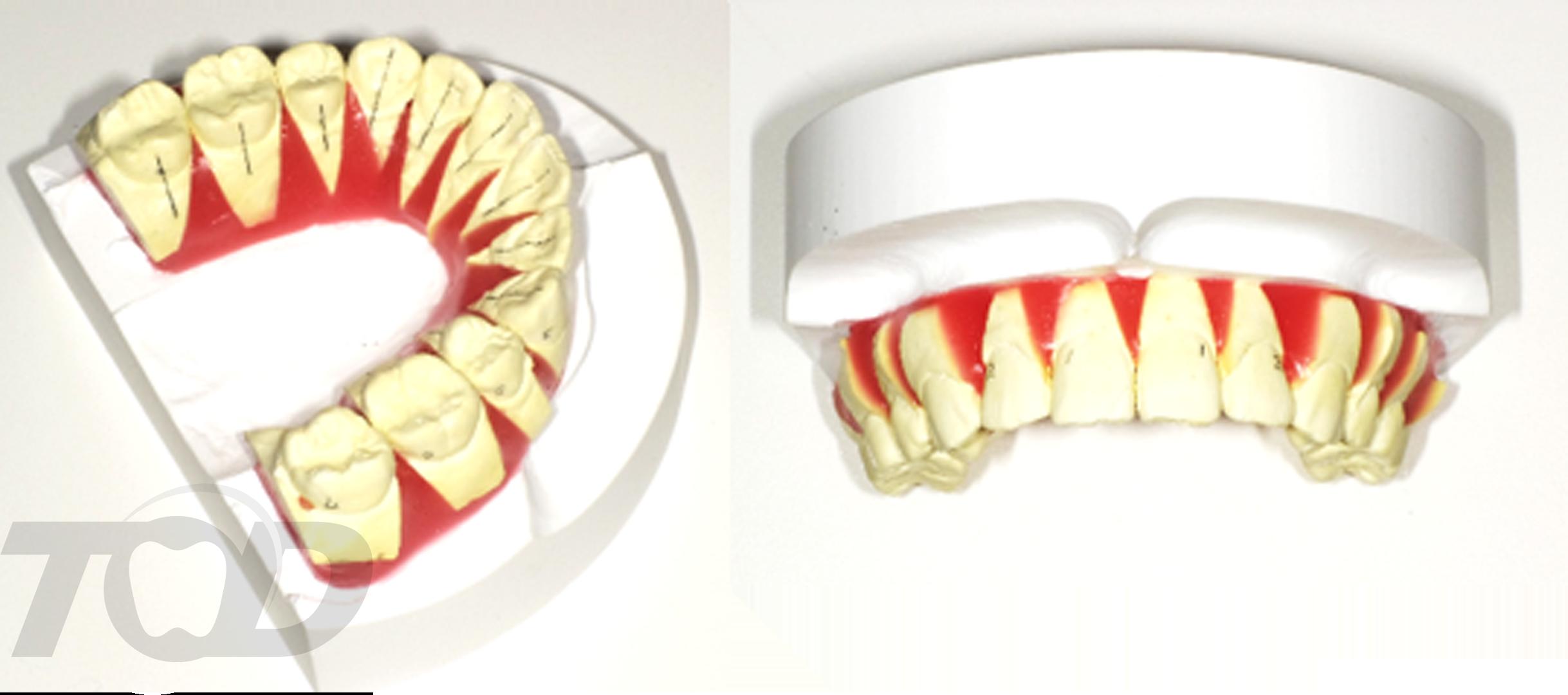 当院の舌側矯正の特徴3