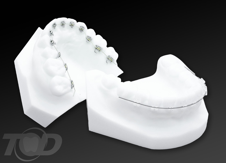 ハーフタイプの舌側装置
