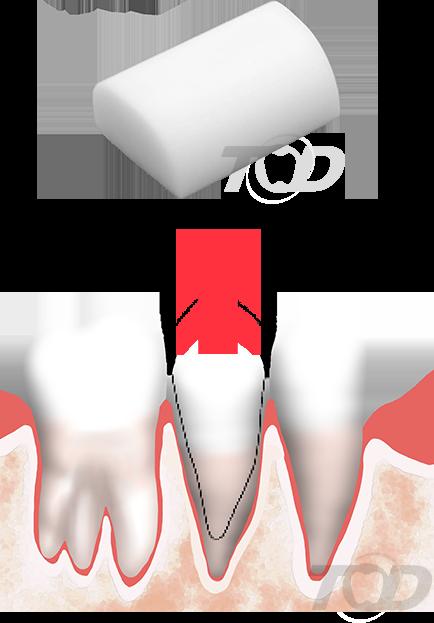歯を持ち上げる