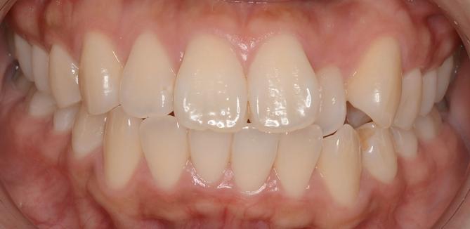 前歯の隙間